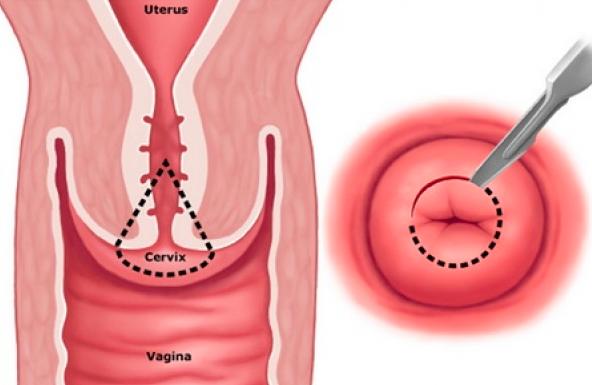 Figura 6- Tratamentul leziunilor precancrioase