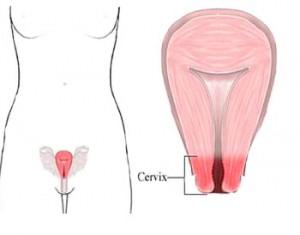 figura1-colul-uterin_